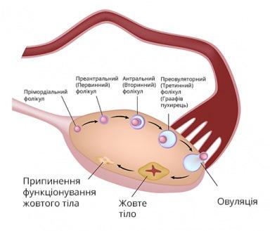 СПКЯ, синдром полікістозних яєчників